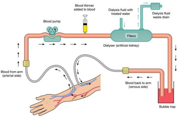 Diamond Dialysis